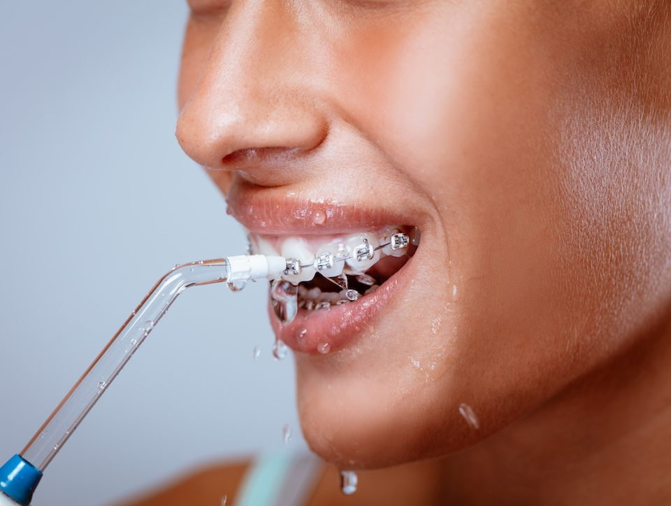 Water-Flossing-vs-Normal-Flossing-Which-to-Choose