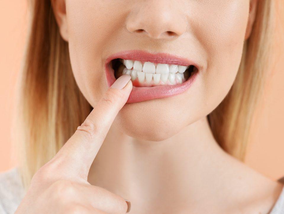 how-to-prevent-periodontitis